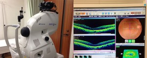 3DOCT-眼底三次元画像解析